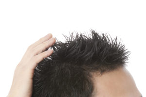 円形脱毛症
